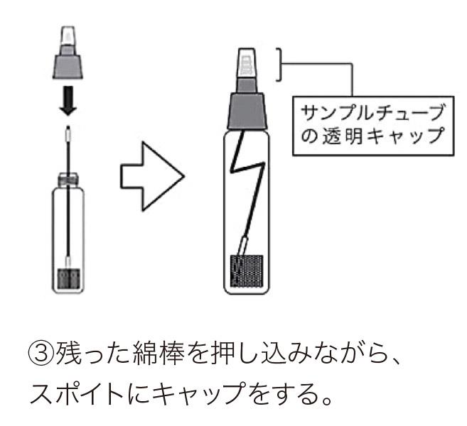 中咽頭、鼻咽頭の検体からの検査方法3